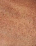 Pores On Human Skin Royalty Free Stock Photo
