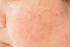 Poriën op het gezicht in vrouwen stock fotografie