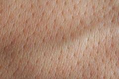 Poros en piel del hombre Fotos de archivo