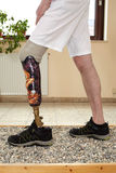 Portador masculino da prótese que aprende transferir o peso Foto de Stock