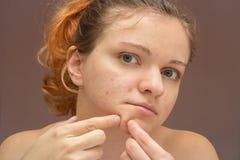 Porträt der jungen Schönheit Akne oder Pickel isola zusammendrückend Stockbild