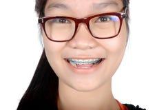 Porträt des asiatischen jungen Mädchens mit Gläsern und Klammern Lizenzfreie Stockfotografie