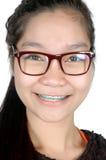 Porträt des asiatischen jungen Mädchens mit Gläsern und Klammern Stockbilder