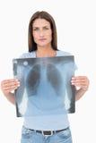 Porträt einer ernsten jungen Frau, die Lungenröntgenstrahl hält Lizenzfreie Stockfotos