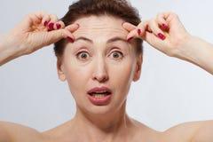 Porträt von Shocked Frau mit Falten auf der Stirn Kollagen- und Gesichtseinspritzungskonzept wechseljahre Geerntetes Bild Kopiere Lizenzfreie Stockbilder