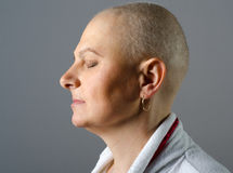 Portrait of bald woman cancer patient after successful chemothe Stock Photography