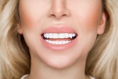Portrait of a beautiful, smiling blond woman model with very white teetho royalty free stock photos