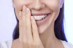 Portrait of Beautiful smiling girl covering her retainer for tee. Portrait of Beautiful smiling girl covering with hand her retainer for teeth stock photo