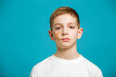 Portrait of a boy with adhesive plaster on his cheek Royalty Free Stock Image