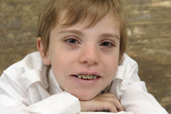 Portrait of a boy with braces Royalty Free Stock Photo