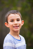 Portrait boy missing milk teeth outdoor. Portrait of young child with loose and missing milk teeth, boy happy joyful friendly smiling., blurred background Royalty Free Stock Photos