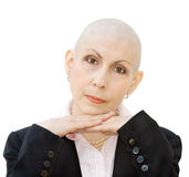 Portrait of cancer patient. Undergoing chemotherapy and loss of hair. Real woman, diagnosed with breast cancer and ovarian cancer. Isolated over white royalty free stock photo