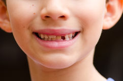 Portrait child missing milk tooth outdoor Royalty Free Stock Images