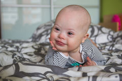 Portrait of cute baby boy with Down syndrome. On the bed in home bedroom stock photo