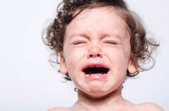 Portrait of a cute sick baby boy crying. Adorable upset child wi. Th spots on his face and body form illness, mosquito bites, roseola, rubella, measles stock photo