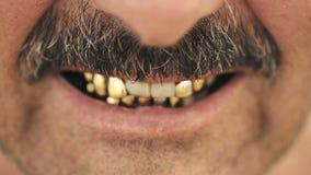 Portrait d'un homme mauvais avec une moustache, avec des dents de fer banque de vidéos