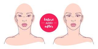 Portrait d'une femme avant et après avec des défauts d'image Photo libre de droits