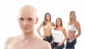 Portrait de femme chauve - cancer du sein Awereness photographie stock