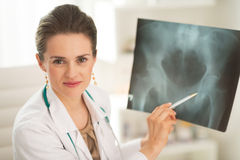 Portrait of doctor woman pointing on fluorography Royalty Free Stock Photos