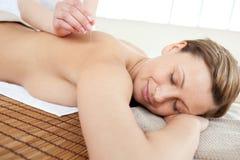 Portrait einer Frau in der Akupunkturtherapie stockfoto