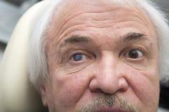 Portrait of elderly man with eye disease Stock Photos