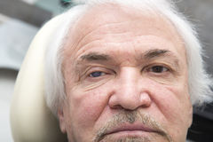 Portrait of elderly man with eye disease Stock Images