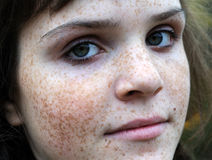 Portrait of freckled teenage girl Stock Images