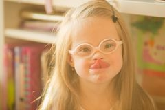 Portrait of a girl with Down syndrome. Portrait of a girl with Down  syndrome Stock Photo