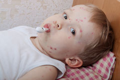 Portrait of little boy with chickenpox Stock Photo