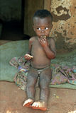 Portrait of malnourished Ghanaian boy Royalty Free Stock Photos