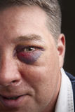 Black eye portrait. Portrait of a man with a black eye stock photos