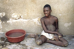 Portrait of mentally disabled Ugandan boy Royalty Free Stock Images