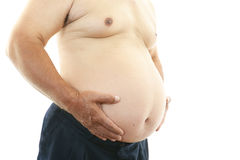Portrait of an obese patient Stock Photography