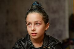Free Portrait Of Nine Year Old Girl. Teenager With Blue Strands On Her Hair. A Series Of Photos Of A Girl Of 8 Or 9 Years Old Stock Photos - 172511973