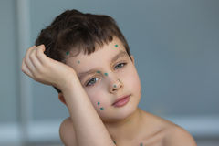 Portrait of a sad little boy with a green points. On a face Royalty Free Stock Photo