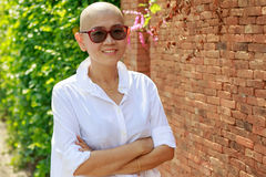 Portrait self confidence asian woman with bald head after cancer. Chemical medicine treatment course royalty free stock photography