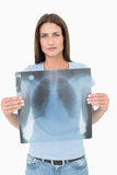 Portrait of a serious young woman holding lung xray Royalty Free Stock Photos
