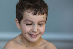 Portrait of a smiling little boy with a green points. On a face Stock Photo