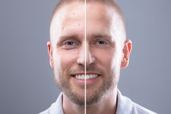 Man`s Face Before And After Cosmetic Procedure. Portrait Of A Smiling Man`s Face Before And After Cosmetic Procedure On Grey Background stock image