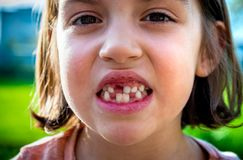 Portrait of toothless child girl missing milk and permanent teet. H. Closeup of young kid with teeth gaps and growing permanent teeth and healthy gums posing Royalty Free Stock Photos