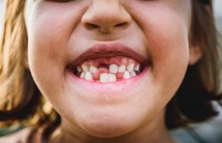 Portrait of toothless child girl missing milk and permanent teet. H. Closeup of young kid with teeth gaps and growing permanent teeth and healthy gums posing Royalty Free Stock Photo
