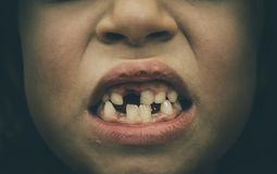 Portrait of toothless child girl missing milk and permanent teet. H. Closeup of young kid with teeth gaps and growing permanent teeth and healthy gums posing Stock Images