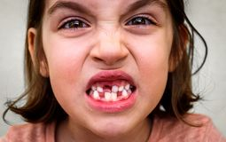 Portrait of toothless child girl missing milk and permanent teet. H. Closeup of young kid with teeth gaps and growing permanent teeth and healthy gums posing Stock Photo