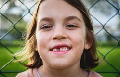 Portrait of toothless child girl missing milk and permanent teet. H. Closeup of young kid with teeth gaps and growing permanent teeth and healthy gums posing Royalty Free Stock Photography