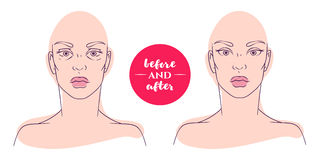 Portrait of a woman before and after with cosmetic defects. Stock Photography