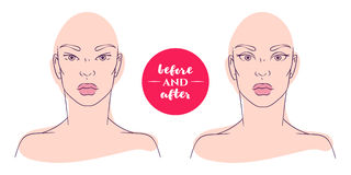 Portrait of a woman before and after with cosmetic defects. Royalty Free Stock Photo