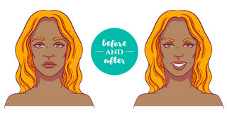 Portrait of a woman before and after with cosmetic defects. Royalty Free Stock Photos