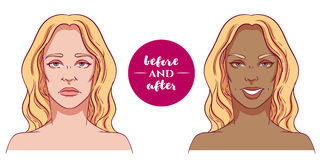 Portrait of a woman before and after with cosmetic defects. Royalty Free Stock Photography