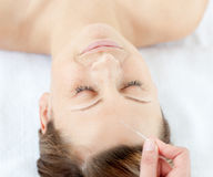 Portrait of a woman having an acupuncture therapy Royalty Free Stock Photo