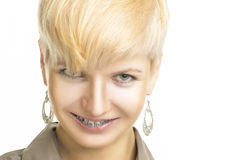 Portrait of Woman With Teeth Brackets Stock Photos